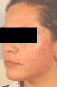 acne laser treatments los angeles after photo