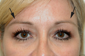botox brow lift los angeles before