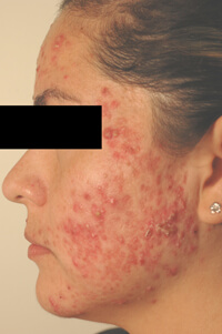 acne laser treatments los angeles before phot0