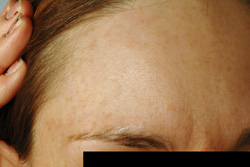 Cafe-au-lait Los Angeles Birthmark Removal Laser after photo