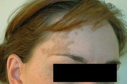Cafe-au-lait Los Angeles Birthmark Removal Laser before photo