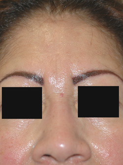 botox los angeles for frown lines before and after photos