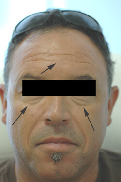 botox for men forehead before picture