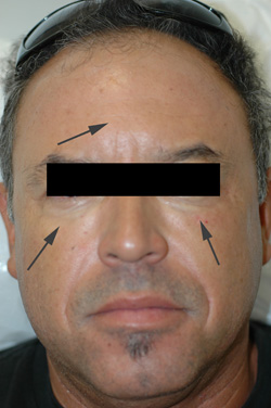 botox for men forehead after picture