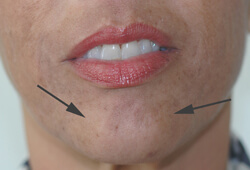 botox for pebble chin before and after pictures