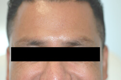 forehead botox after photo