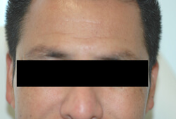 forehead botox before photo