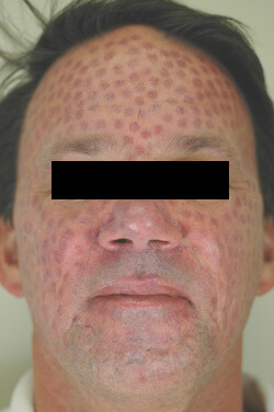 What Is A Bruising Treatment For Rosacea