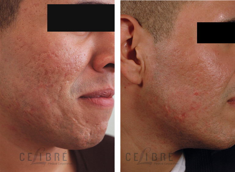 What Is Co2 Laser Resurfacing