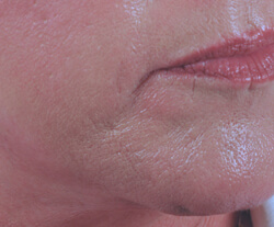 chin rejuvenation with restylane before and after pictures