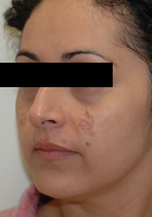 los angeles melasma before pictures