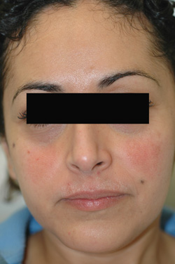 cosmelan triluma melasma after photos