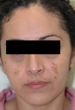 cosmelan triluma melasma before photos