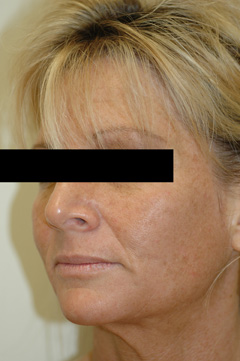 orange county laser resurfacing before photo