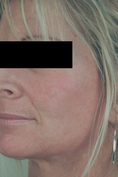 orange county laser resurfacing after photo
