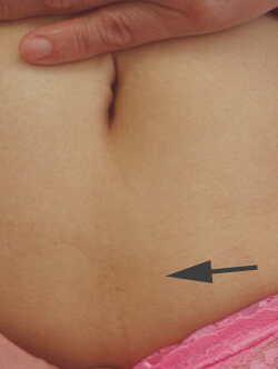 Long Beach laser scar removal before and after pictures