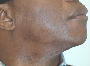 los angeles black skin laser hair removal after picture
