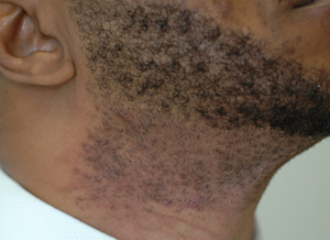 Is Laser Hair Removal Safe For Black Skin