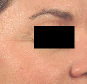 erbium vs. fraxel resurfacing before and after pictures