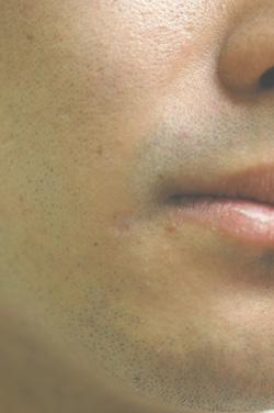 Can Laser Treatment Remove Chicken Pox Scars