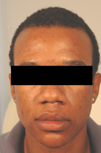 los angeles acne scar removal with lasers before picture