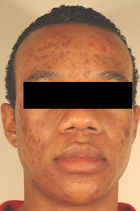 acne scars dark skin laser treatments before and after photos