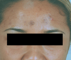 Los Angeles brown acne scar removal before and after pictures