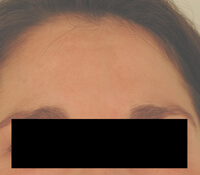 los angeles melasma treatment before and after photos