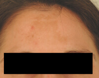 melasma treatment los angeles before and after photos
