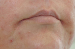 mouth frown revision with restylane before and after pictures
