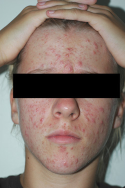 orange county laser acne treatment before and after pictures