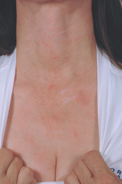 How Many Laser Treatments For Poikiloderma