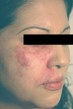 los angeles port wine birthmark removal with laser after photo