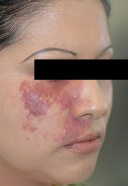 los angeles port wine birthmark removal with laser before photo