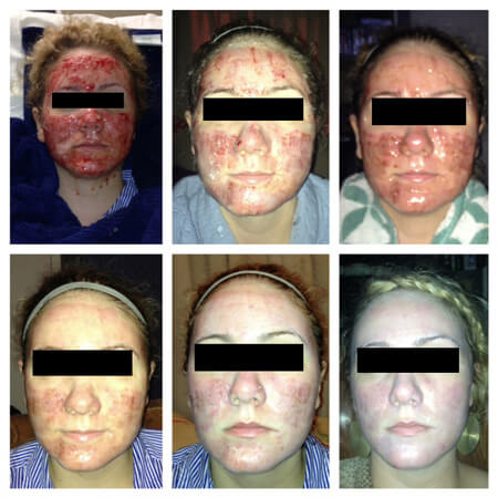 Recovery For Deep Profractional Laser Resurfacing