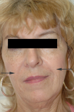 Restylane los angeles after photo