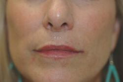 los angeles restylane for lips after photo
