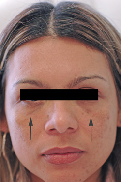 los angeles restylane for dark circles after photo