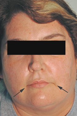Los Angeles Botox injections after picture