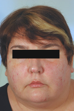 Los Angeles Botox injections before picture