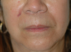 restylane bruise picture