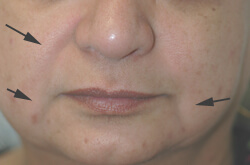 downtime for restylane injections before and after pictures
