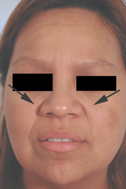 los angeles restylane for laugh lines before and after pictures