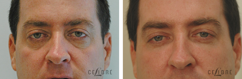 What Is The Best Treatment For Wrinkles Around The Eyes?