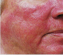 los angeles laser rosacea treatment before and after photos