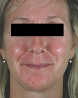 los angeles rosacea laser treatment before and after photos