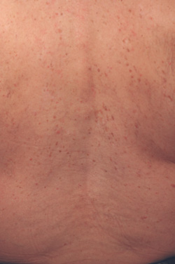 sun damage laser treatments before and after pictures
