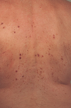 laser treatments for age spots before picture