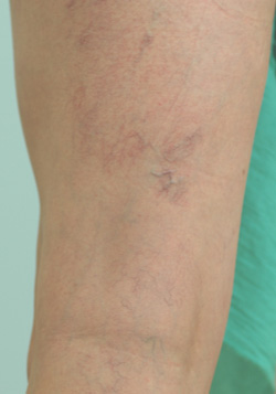 los angeles spider vein removal before and after pictures