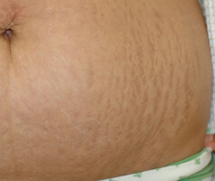 Los Angeles laser stretch mark removal before photo